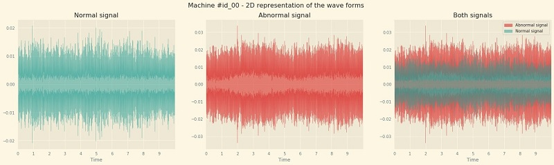 The first thing we do is plot the waveforms of normal and abnormal signals.